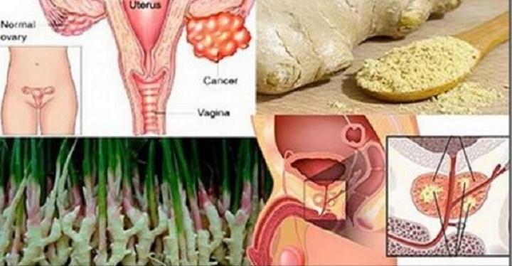 Pesquisa comprova: gengibre é eficaz contra câncer de mama, ovário e próstata – mas tem que usar desta forma