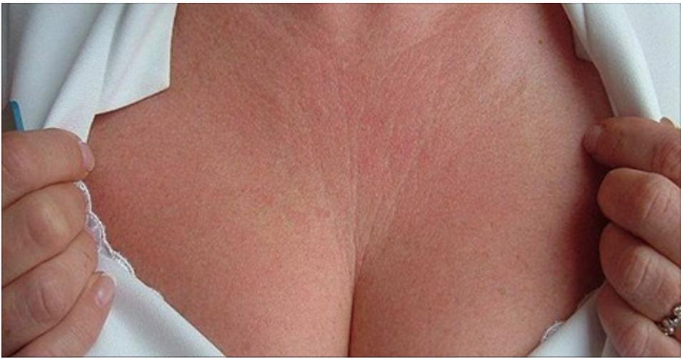 2 incríveis receitas para reduzir as rugas e linhas finas dos seios e pescoço!