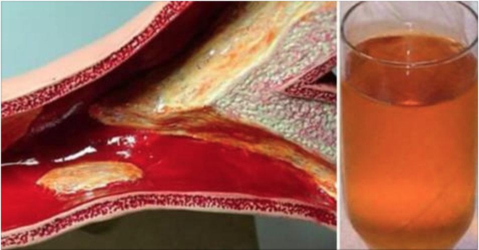 40 dias para você limpar suas artérias com apenas 2 ingredientes!