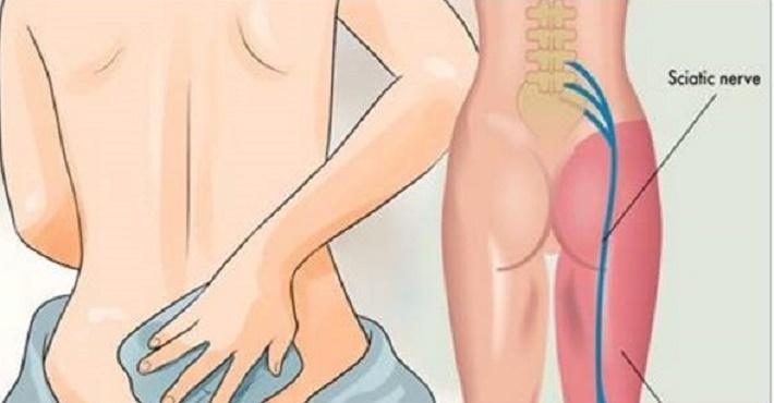 5 remédios caseiros para eliminar a dor ciática – e o nº 4 elimina logo na primeira aplicação!