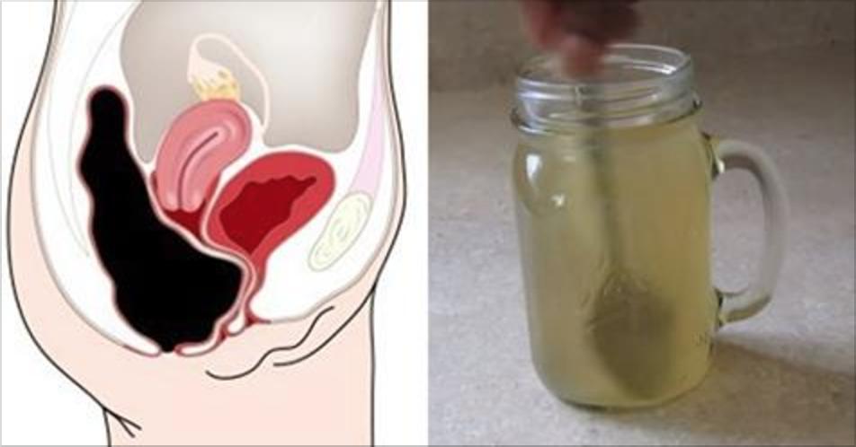 Esta simples bebida vai retirar quilos de toxinas do seu intestino!