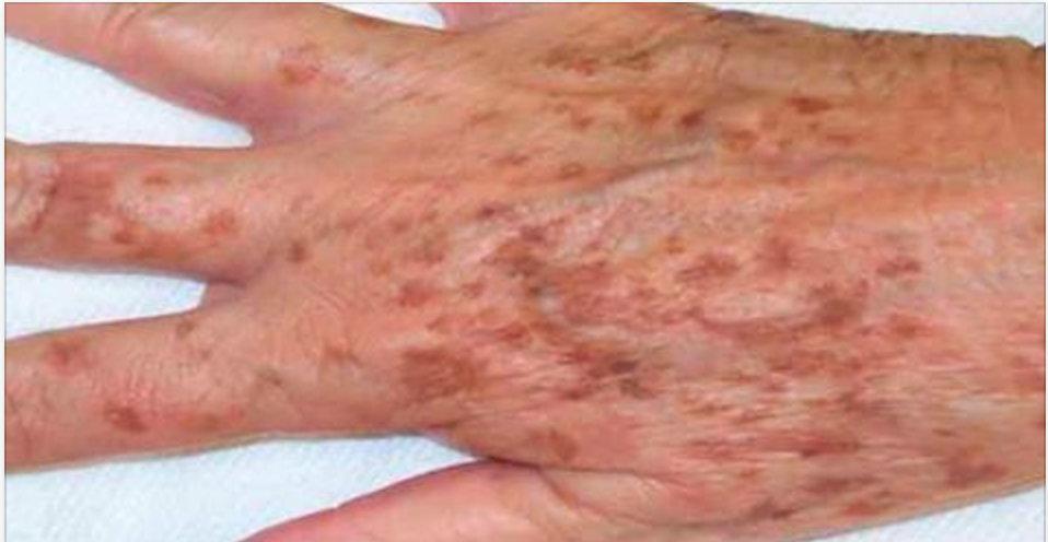 Basta uma gota disto para você eliminar todas as manchas da sua pele!