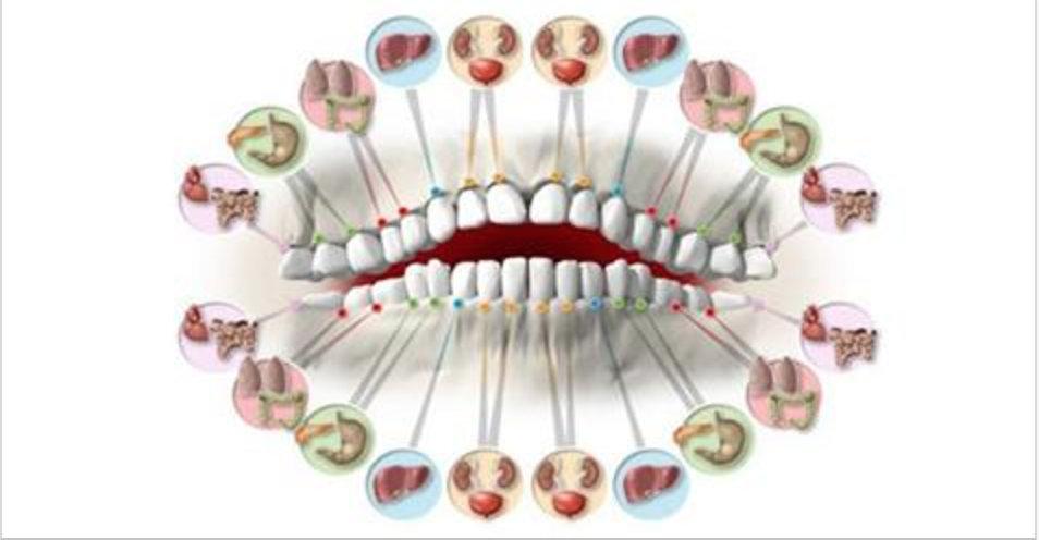 Cada dente é ligado a um órgão – a dor de dente pode revelar problemas nos órgãos do corpo!