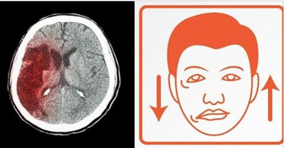 5 sinais de que um derrame está prestes a acontecer – você não pode ignorá-los