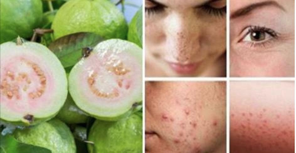 Como usar a folha de goiaba para eliminar ressaca, acne, manchas, tosse e queda de cabelo