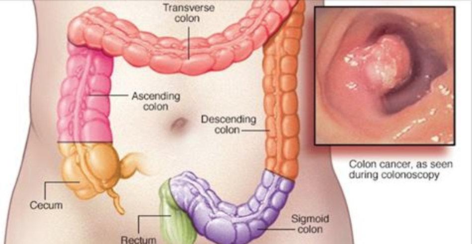 Todas as doenças do intestino podem ser evitadas e curadas se as pessoas souberem disto