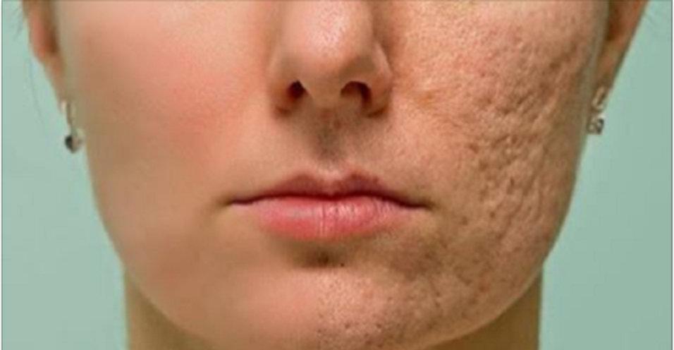 Alise sua pele e deixe-a com uma aparência incrível – tratamento com resultado quase imediato!