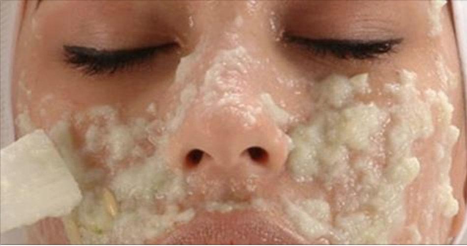 Botox caseiro – não precisa gastar muito para ter pele esticada e juventude do rosto recuperada