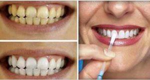 dentes_-_babosa