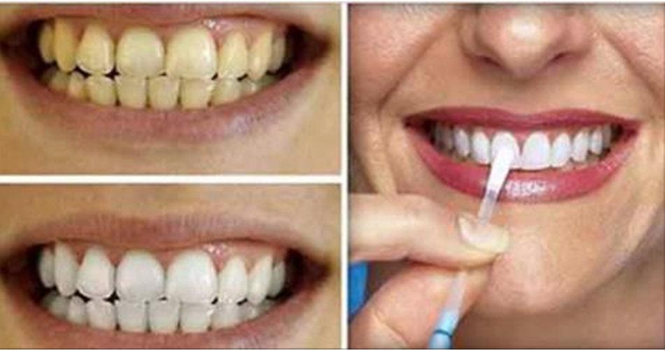 Esta é a forma mais simples e barata de clarear os dentes em casa – apenas 1 ingrediente