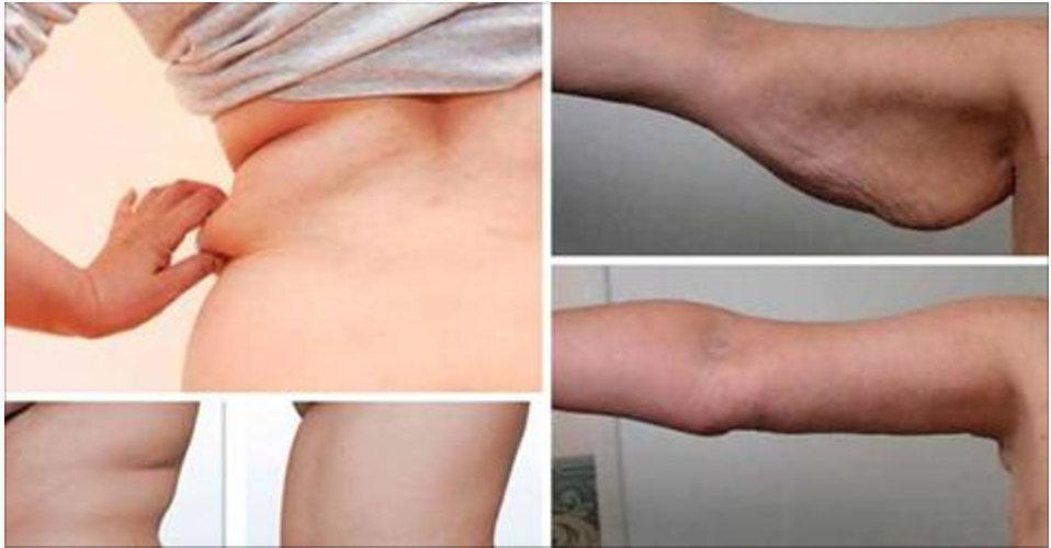 Em 21 dias, braços e costas tonificados e com menos gordura – mas você tem que fazer isto!