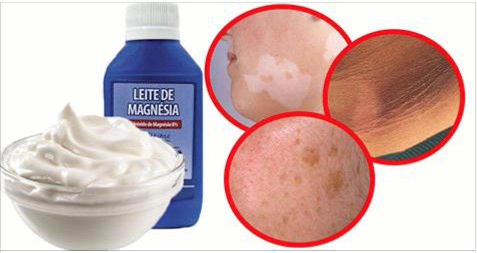 Se você aplicar esta receita no seu rosto todas as noites, em breve não terá nenhuma mancha!