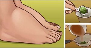 pese_pernas_inchados