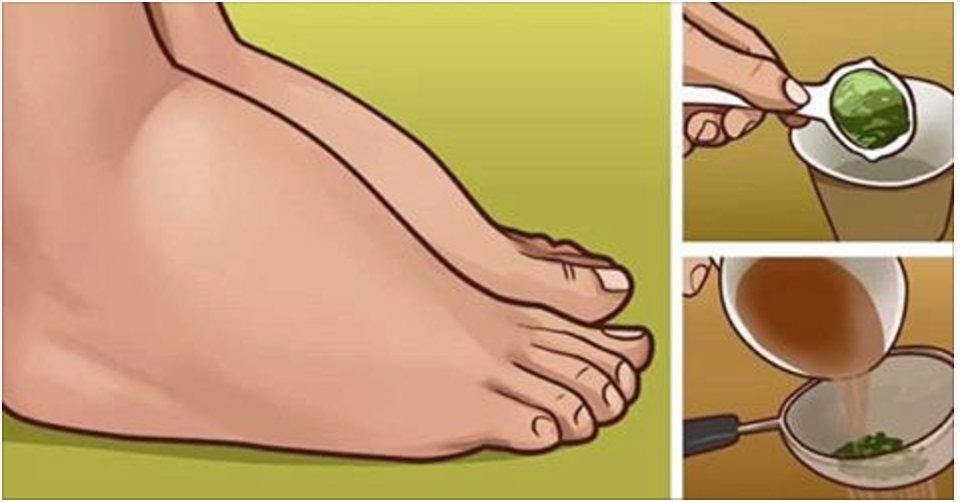 3 remédios caseiros para combater o cansaço e desinchar pés e pernas