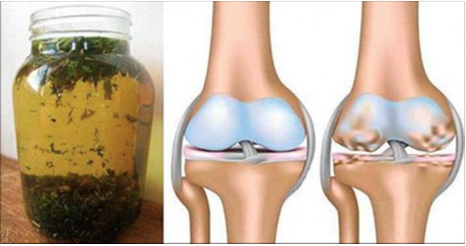 Elimine dores musculares e nas articulações com este remédio de ervas anti-inflamatórias!
