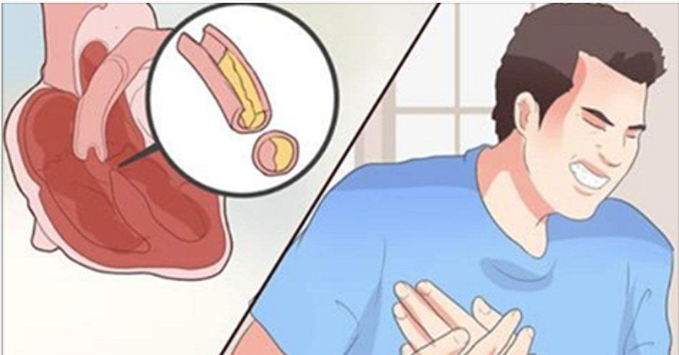 3 colheres disto todos os dias vão limpar suas artérias – adeus, taxas de gordura altas