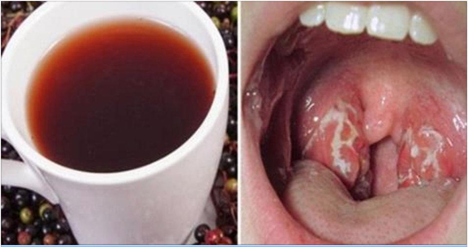 Como se livrar de uma infecção de garganta de forma natural e em pouco tempo