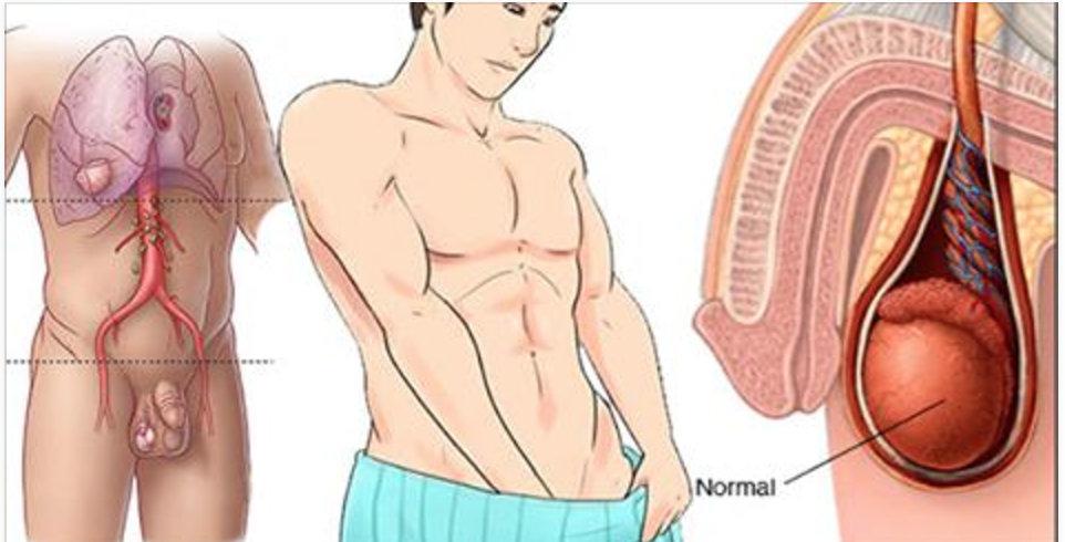 Câncer de testículo: sintomas e outras pistas de uma ameaça desconhecida pela maioria dos homens