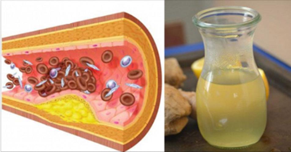 Se tem colesterol alto e problemas de circulação, tome 1 colher disto e desentupa suas artérias!
