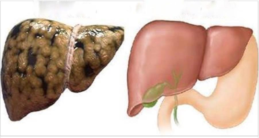 Como restaurar o fígado de forma natural para deixá-lo com saúde outra vez