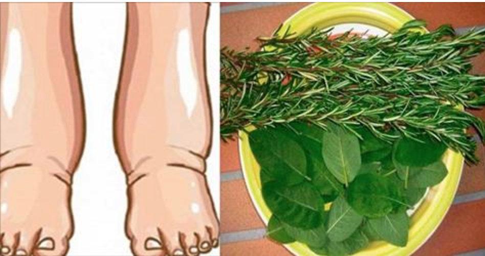Este poderoso remédio alivia rapidamente o inchaço nos pés e pernas – 100% natural!