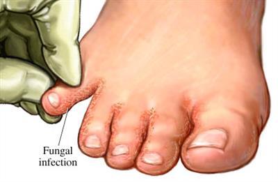 Livre-se de micose nos pés de uma forma muito fácil: basta mergulhar seus pés nisto