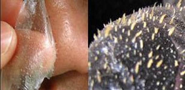Creme Caseiro com limão e iogurte que elimina a acne e remove as cicatrizes