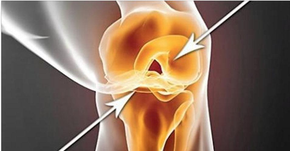 Esta bebida ajuda a reconstruir a cartilagem, ligamentos e elimina a dor nos joelhos