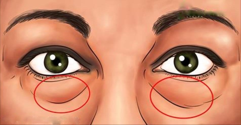 Os melhores tratamentos naturais para eliminar as bolsas abaixo dos olhos