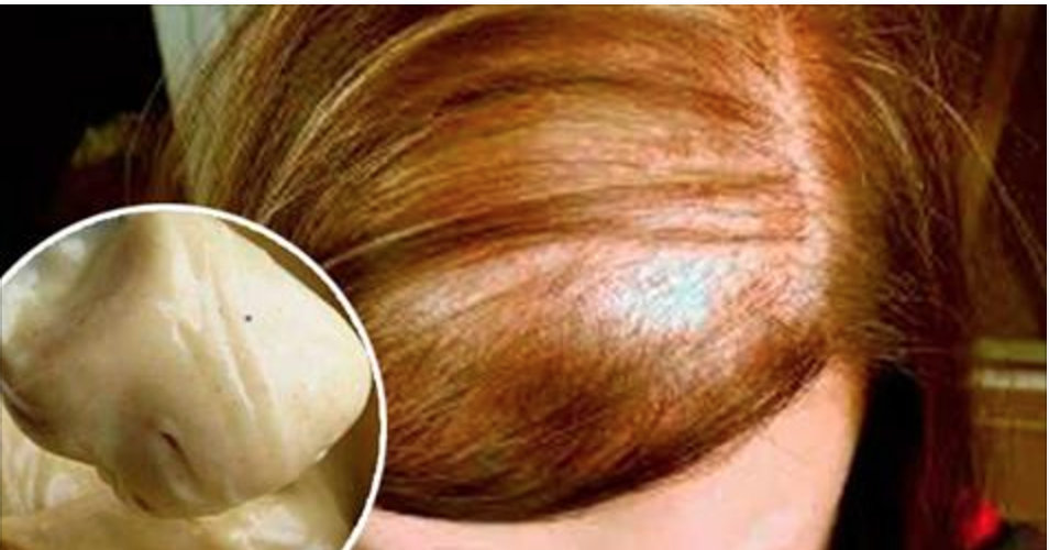 Decrete o fim da queda de cabelo com esta mistura de 4 ingredientes