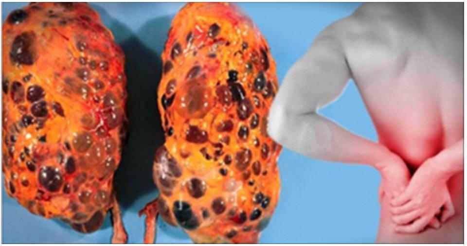 Atenção – estes são os sinais que indicam que seus rins não estão bem