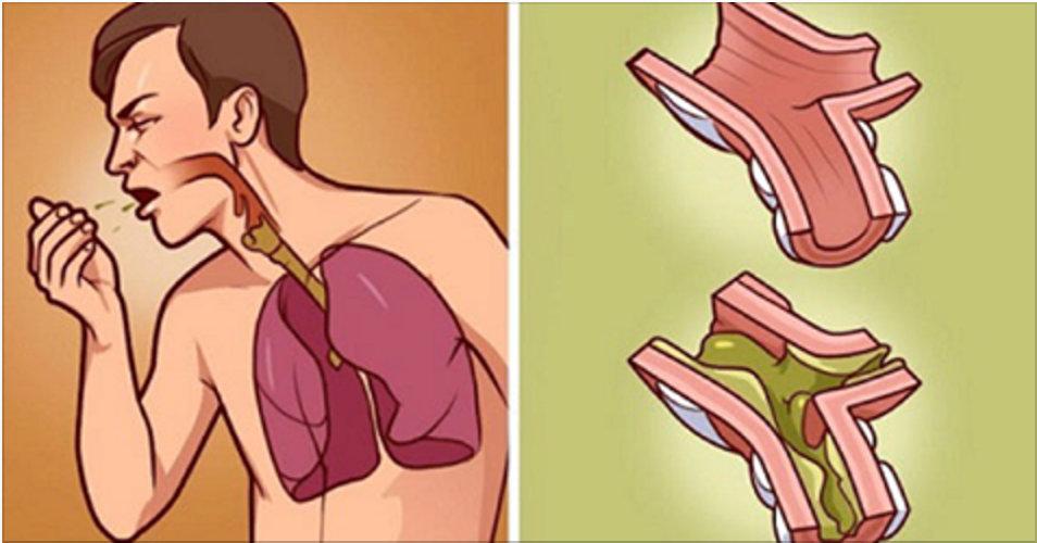 Quando seus pulmões estão cheios de catarro, esta é a melhor cura – funciona rápido