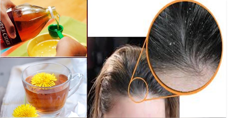 Receitas naturais para combater caspa e seborreia