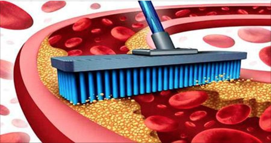 20 alimentos que têm o poder de varrer todo colesterol preso nas paredes das artérias