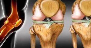 cartilagem%2B-%2Bcomo%2Brecuperar%2B-%2Blisina.jpg%2Bedit
