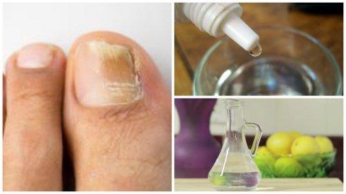 """Fabrique o seu próprio remédio """"antifungos"""" para as unhas"""