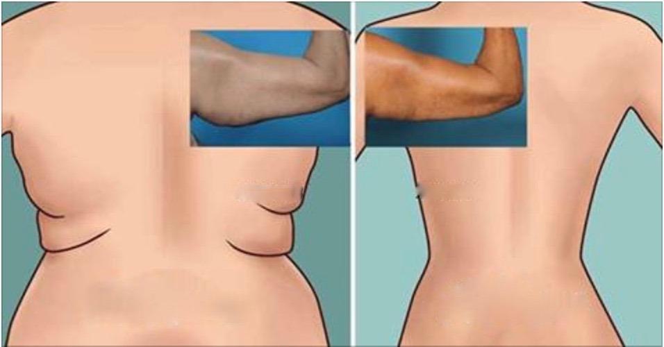 Experimente os melhores exercícios para gordura nas costas e braços  – um corpo novo em 90 dias