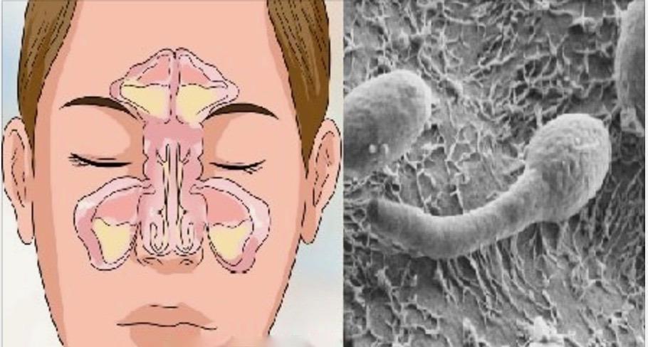 Nariz entupido, rinite ou sinusite? Seu problema está no intestino – Saiba como resolver