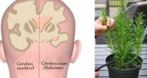 plantas_-_alzheimer