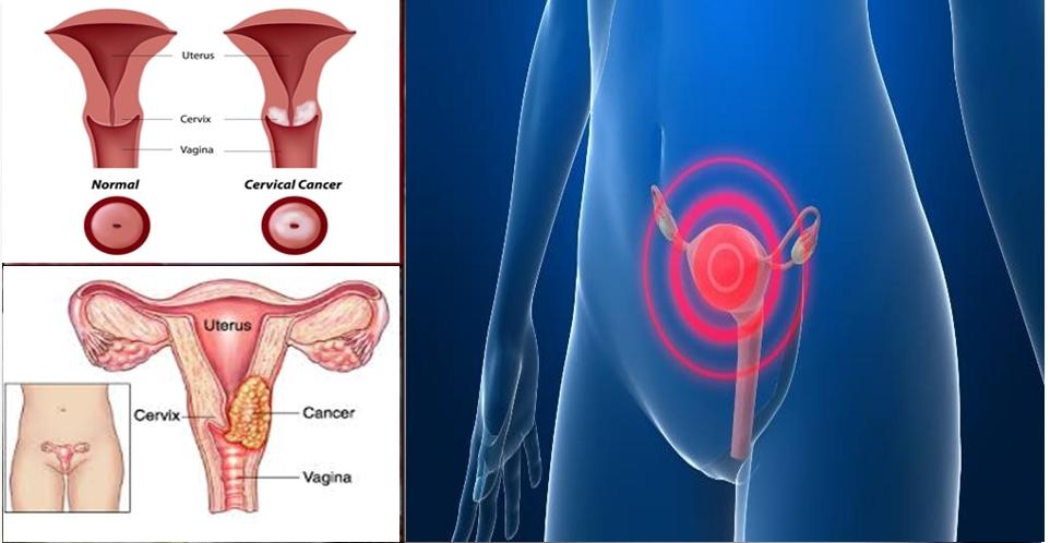 Sinais de câncer de colo do útero que as mulheres precisam observar