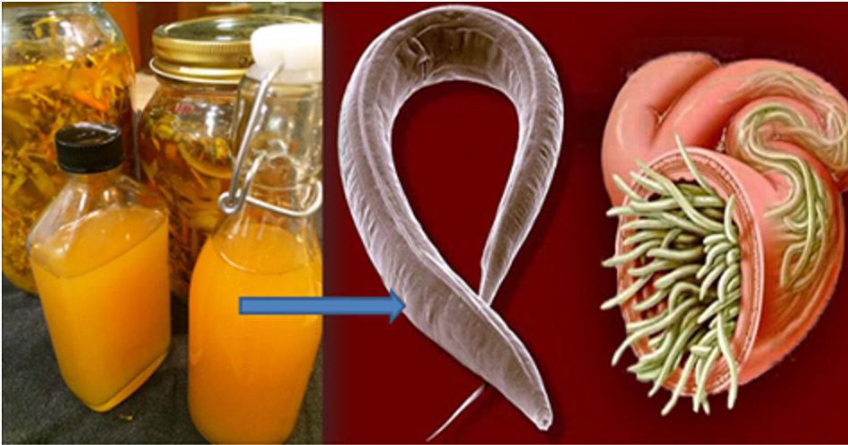 É o mais poderoso vermífugo natural – elimina qualquer tipo de parasita do seu corpo