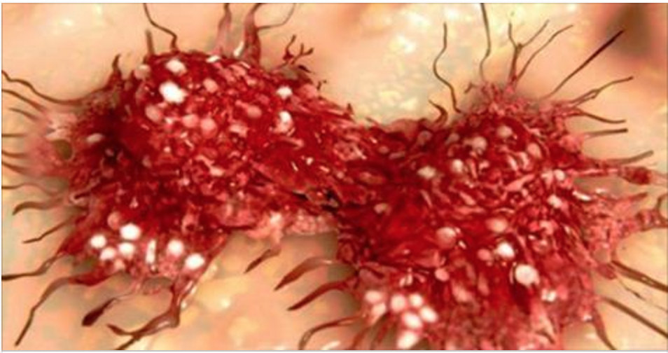 Atenção a esta notícia: vitamina que pode curar o câncer é proibida nos Estados Unidos