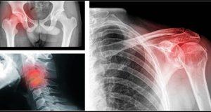 9-tipos-de-dores-que-estão-diretamente-ligadas-a-estados-2