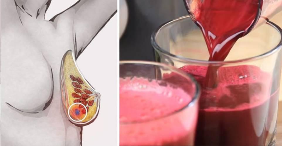 Seis motivos para você beber suco de beterraba todo dia!