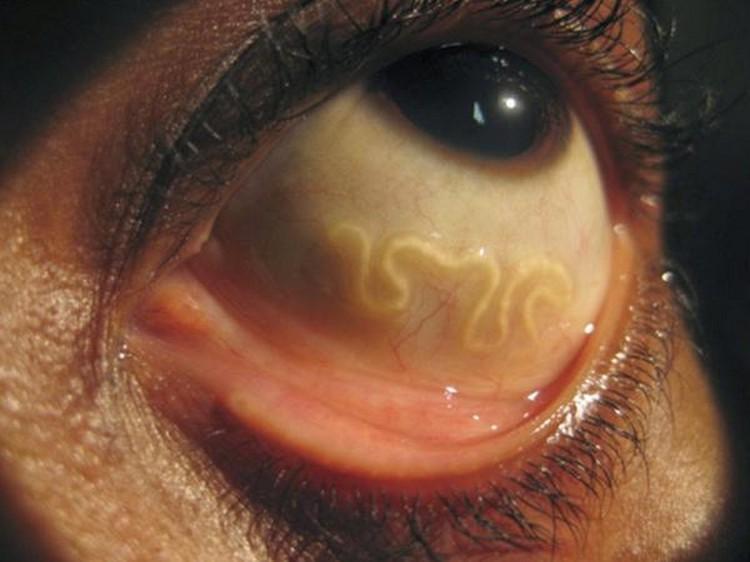 Veja os sinais de alerta que você esta com um parasita – ganho de peso, ansiedade, desejo por açúcar…