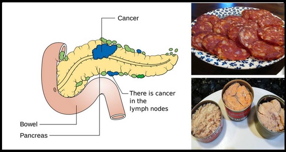 11 comidas altamente cancerígenas que você nunca mais deve colocar em sua boca