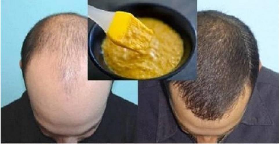 Decrete o fim da queda de cabelo com este poderoso remédio caseiro e natural do tempo da sua avó