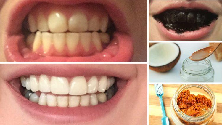 Aprenda 10 receitas de clareamento dental caseiro