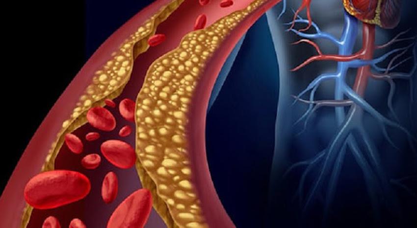 Com estes remédios naturais, você vai rapidamente normalizar colesterol e triglicerídeos