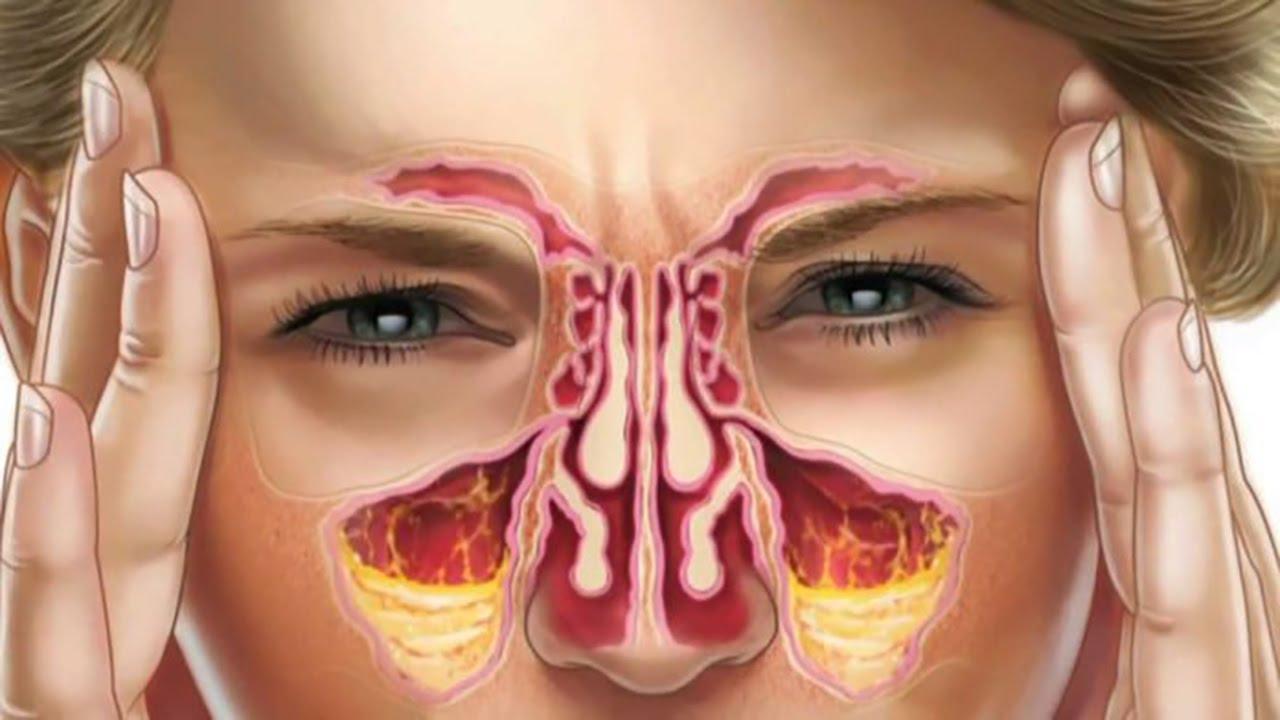 Livre-se do nariz entupido e dos sintomas da gripe de forma natural com essas duas receitas!